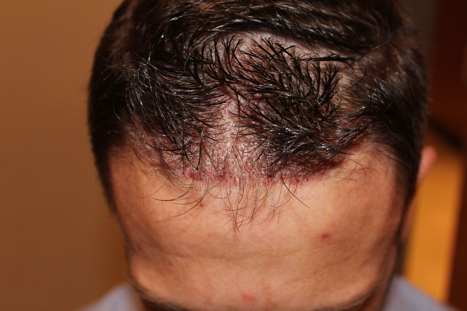 FUE hair transplant without shaving head: Unshaved recipient area directly after the surgery