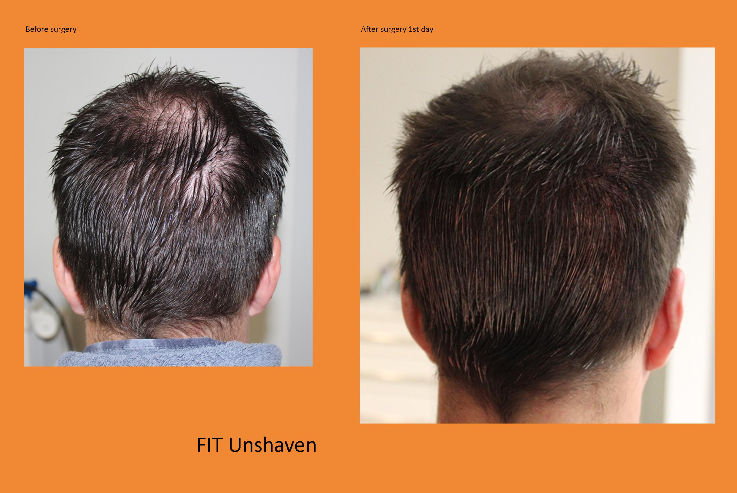 U-FUE Hairtransplant Extraction without shaving