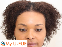 My U-FUE for women