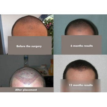 Compare before, directly after the operation, result 6 months and result 12 months