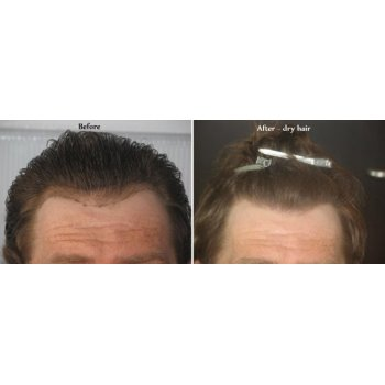 Before and after dry hairs 1