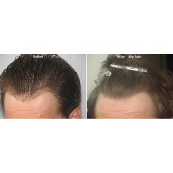 Before and after dry hairs  2